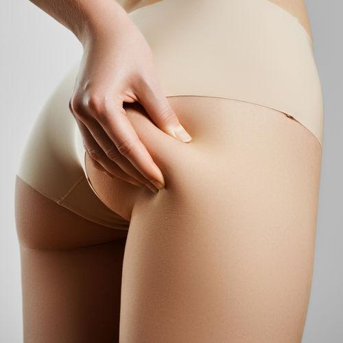 Lutter contre les capitons avec un aspirateur pour enlever la cellulite.